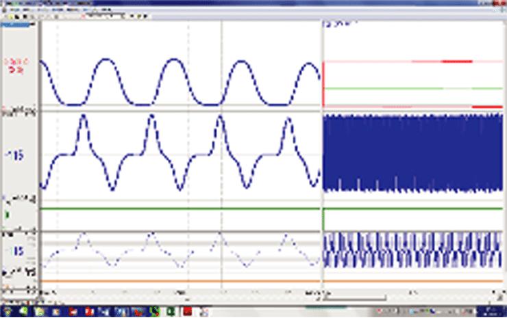 心臓機能解析