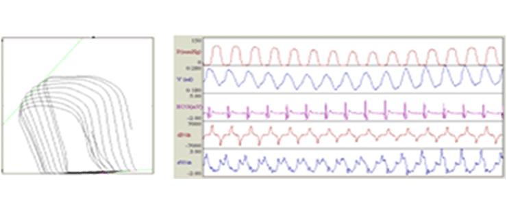 心機能測定装置・インテグラル VPR‒1003